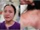 광저우 외국인 확진자, 채혈 거부 간호사 구타해 형사 처벌